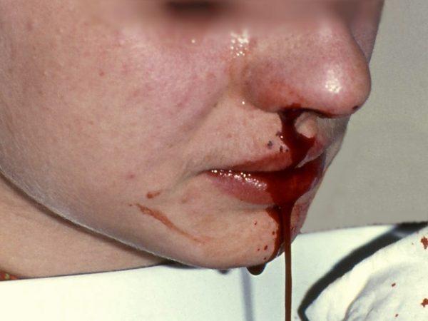 Epistaxis - Nasenbluten