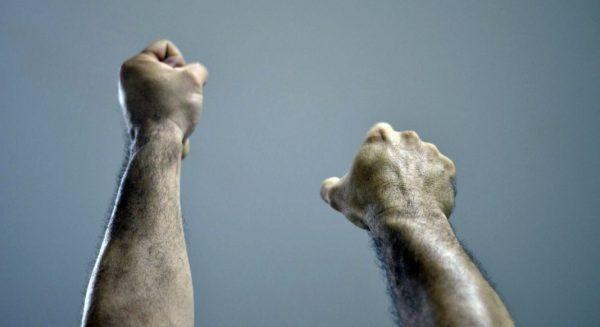 Unterschiedlich lange Arme beim Armlängentest
