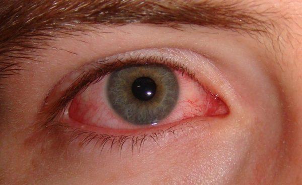 gerötete Augen