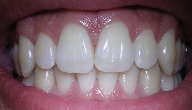 Gesundes Zahnfleisch ohne Zahnfleischerkrankungen