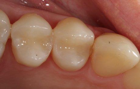 Zahnersatz mit Kunststofffüllung – häufig nur mit Eigenanteil des Patienten