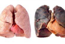 Raucherkrankheiten der Atmungsorgane: Abbildung einer gesunden Lunge und einer Raucherlungeder Atemwege: Abbildung einer gesunden Lunge und einer Raucherlunge