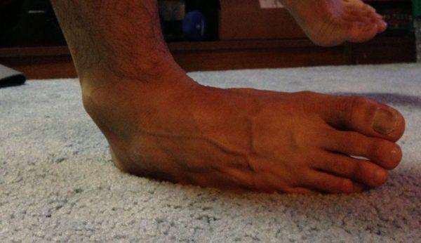 Verstauchung: Das Umknicken eines Knöchels